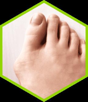 足のお悩み 外反母趾が気になる。